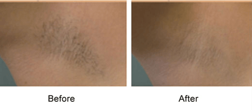 underarm hair removal before & after photo