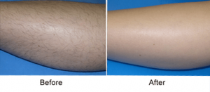 best professional laser hair removal