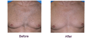best professional laser chest hair removal