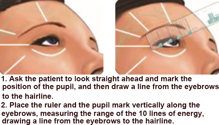 Eyebrow area