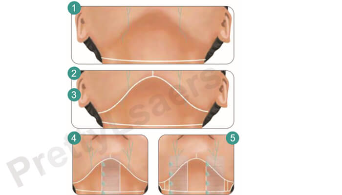 Marking Line Planning: Upper Head (Mandibular Area)