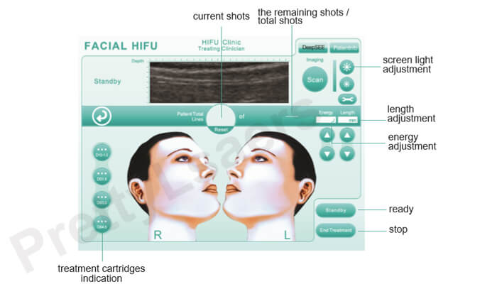 hifu treatment