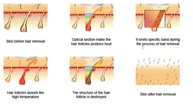SHR Hair Removal Working Theory
