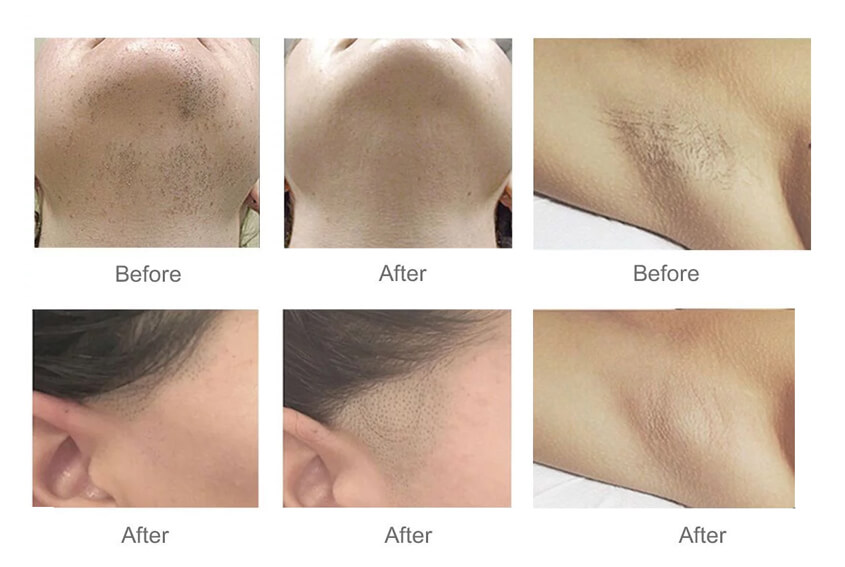 Diode Laser Hair Removal Results