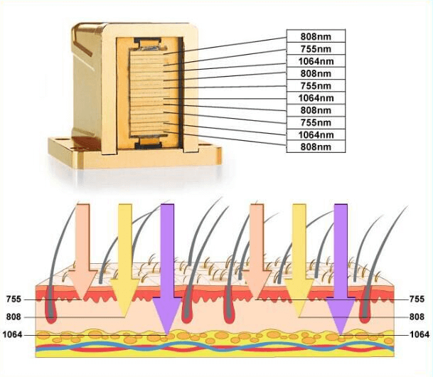 The Best Laser Wavelength-any skin types with 755nm, 808nm & 1064nm wavelengths