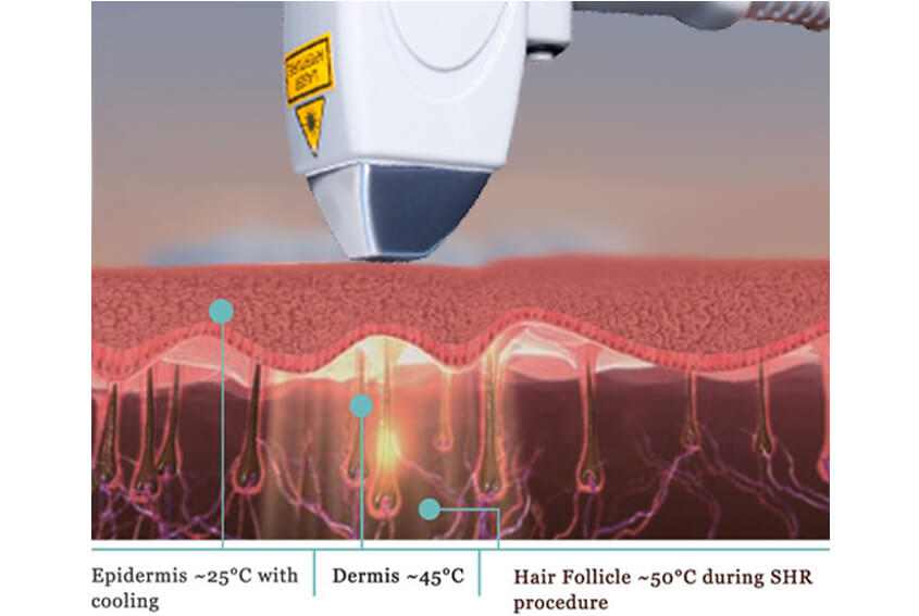 Diode Laser Hair Removal Treatment Principle