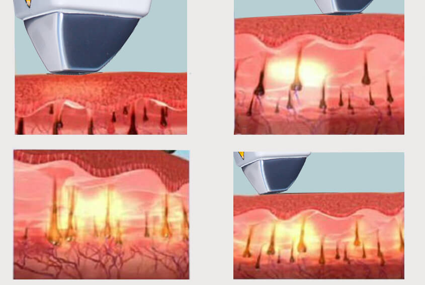 Diode Laser Hair Removal Theory