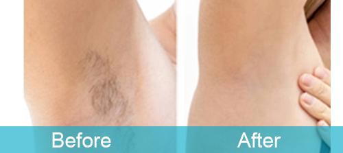 Armpit Hair Reduction For Female