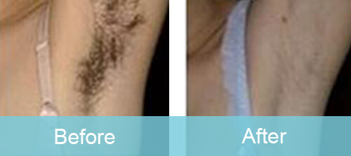 Armpit Hair Reduction For Women