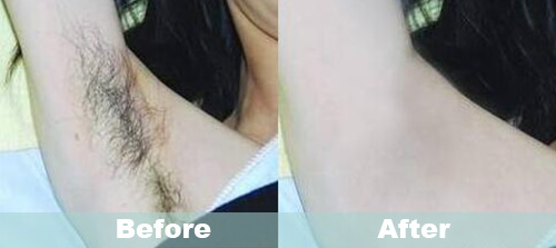 Armpit Hair Removal