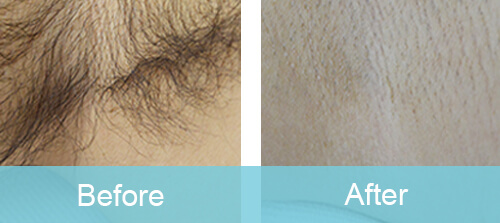 Armpit Hair Removal For Male