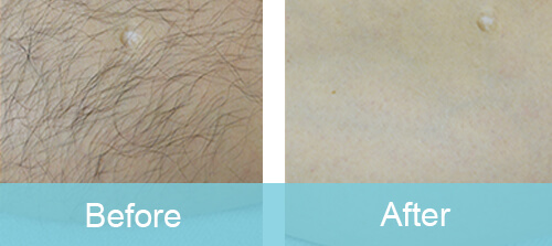Leg Hair Removal For Man