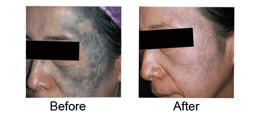 Face Tattoo Rremoval Before And After