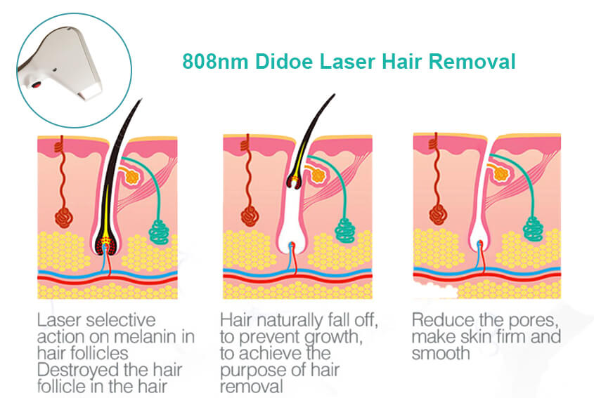 How Does A Portable Laser Hair Removal Machine Work?