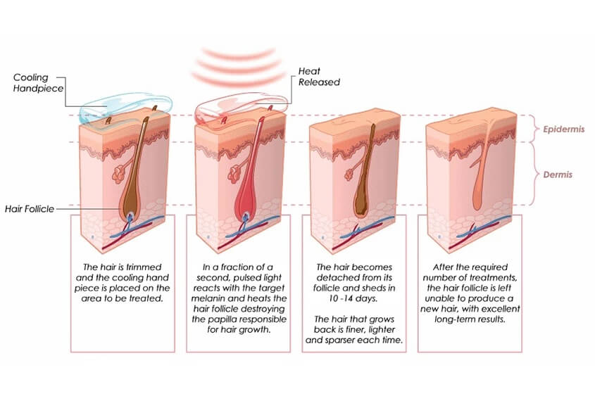 How Doese A Diode Laser Hair Removal Systme Work?