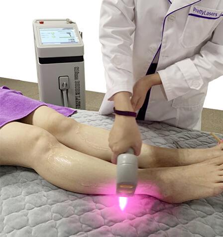 Laser Depilation Applications