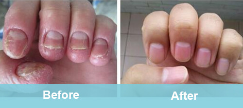 Nails Fungus Removal Treatment