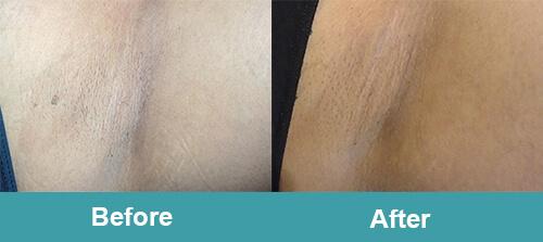 Underarm Laser Hair Removal
