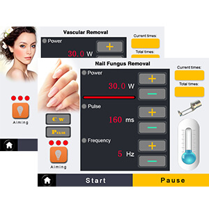 Vascular Removal And Nails Fungus Removal Interface