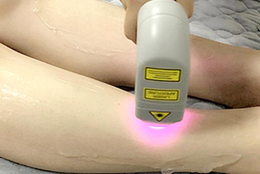 Choosing Optimal Laser Parameters For Effective Permanent Laser Hair Reduction