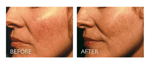 Spider Veins Removal On Face