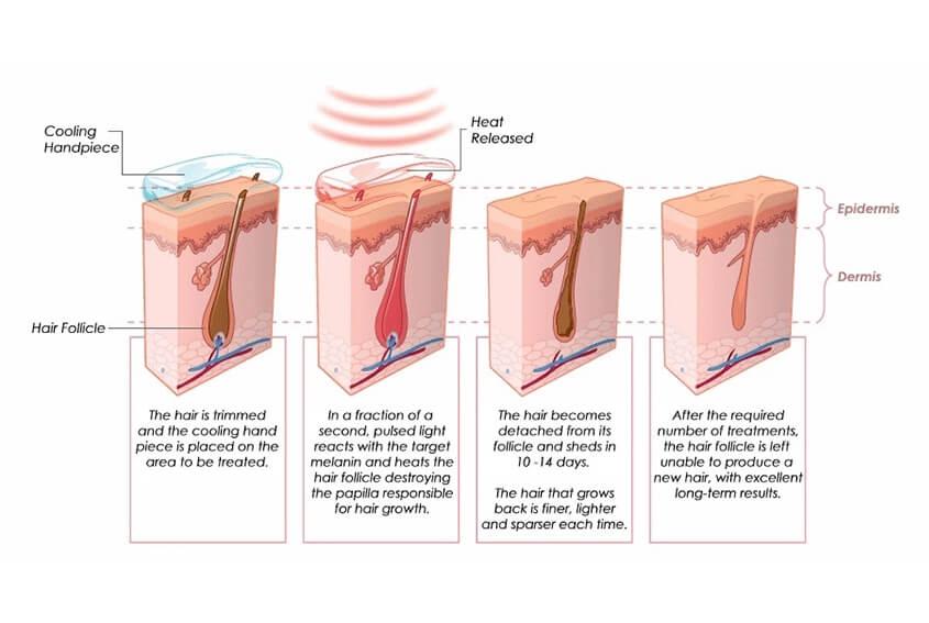 755nm Hair Removal Treatment Principle