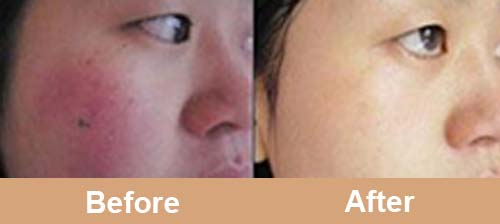 980nm_diode_laser_treatment_before_after_photos