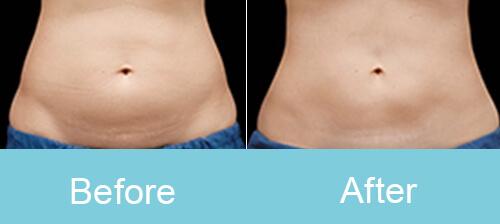 Abdomen Slimming Treatment