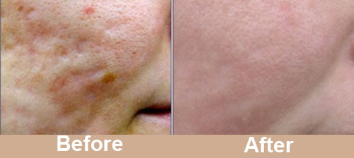 Acne_Scar_Laser_Treatment