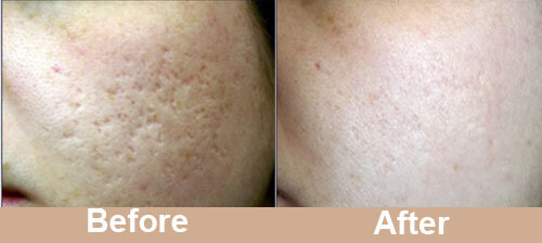 Acne_Scar_Laser_Treatment_before_after_photos