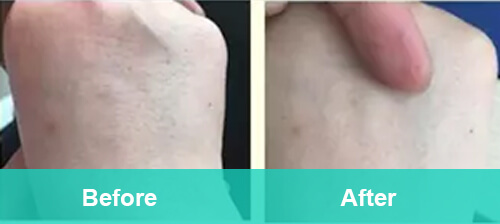 Hands Hair Removal
