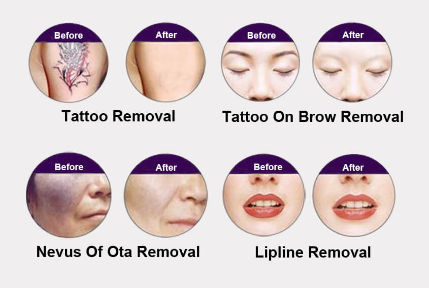 Laser Tattoo Removal MachineApplications