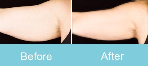 Arm Slimming Treatment