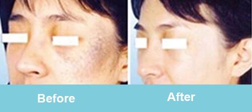 Benign Pigmented Lesions Treatment