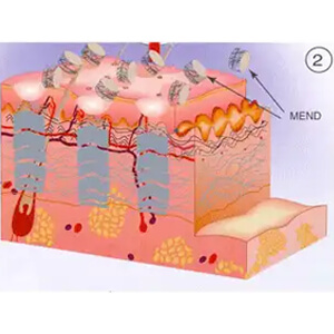 Collagen remodeling takes place in the Microthermal Treatment Zone, and a small plug of MicroEpidermal Necrotic Debris (MEND) flakes off in a few days.