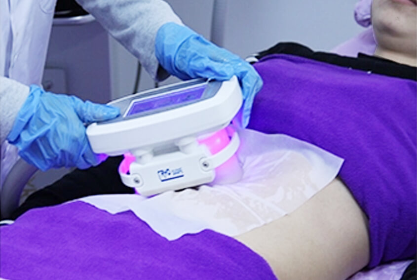 Crolipolysis Body Slimming Treatment