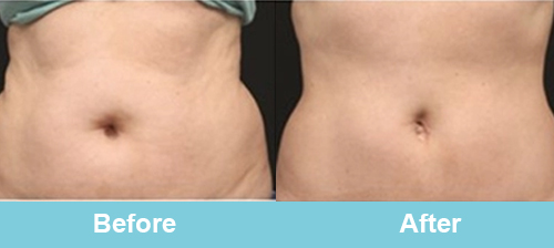 Cryolipolysis Belly Treatment