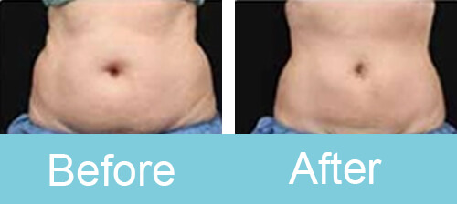 Cryolipolysis Treatment Before After Photos