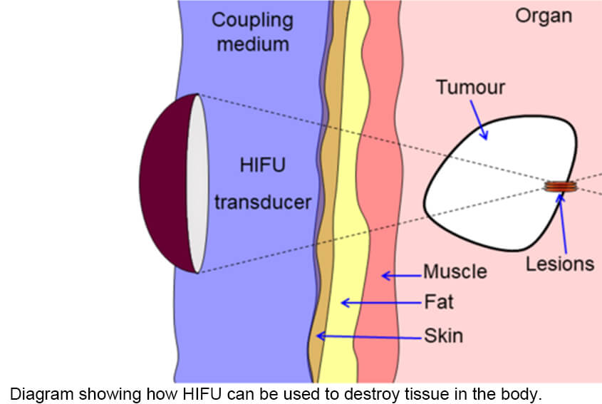 Diagram showing how HIFU can be used to destroy tissue in the body. An acoustic lens is used to focus sound to a small point in the body. The sound propagates through many layers of tissue. Because of the focal gain, only tissue at the focus is destroyed.
