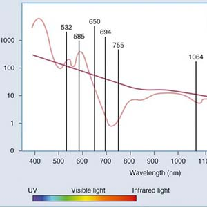 Different Types of Laser Wavelengths Used for Laser Tattoo Removal