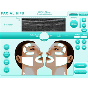 Facial HIFU