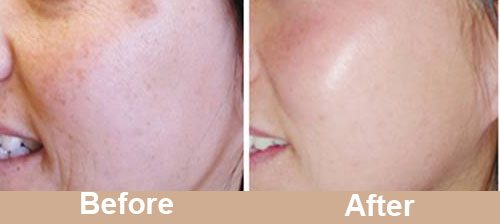 Facial Pigmentation Treatment Before After Photos