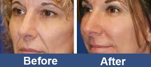 Facial_RF_Skin_Rejuvenation