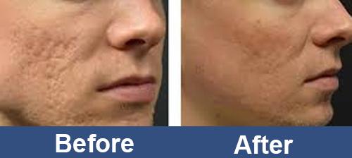 Facial_RF_Skin_Rejuvenation_For_man