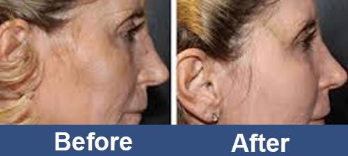 Facial_RF_Skin_Rejuvenation_For_women