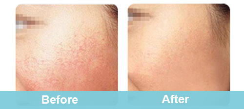Professional Facial Spider Veins Removal Treatment