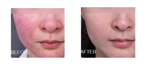 Facial Vascular Removal For Woman