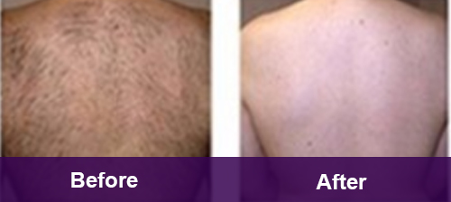 Full Back Hair Removal