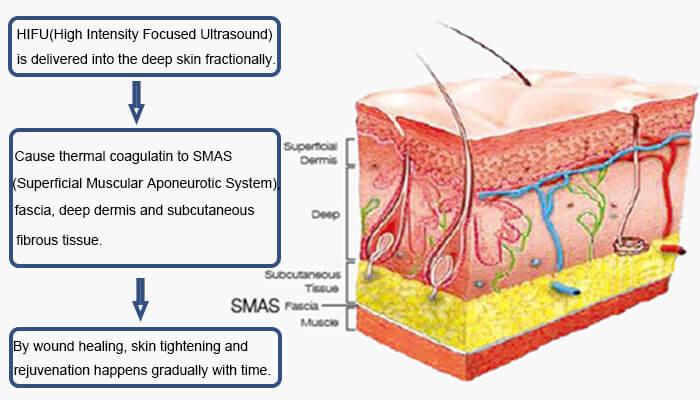 HIFU Skin Tightening Principle