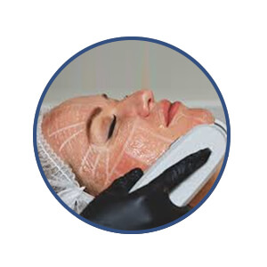 Facial HIFU Treatment